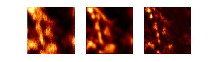 """Próbka biologiczna: mikrotubule znakowane kropkami kwantowymi; od lewej obraz uzyskany: w standardowym mikroskopie, metodą ISM, metodą Q-ISM. Ilustracja wykonana na podstawie danych przedstawionych w suplemencie do publikacji """"Super-resolution enhancement by quantum image scanning microscopy"""" w ,,Nature Photonics''. (Źródło: Alexander Krupiński-Ptaszek, Wydział Fizyki UW)"""